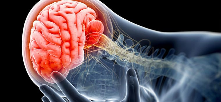 760x350 Doc Blog Brain Injury